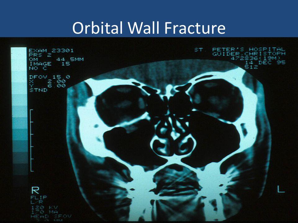 Orbital Wall Fracture