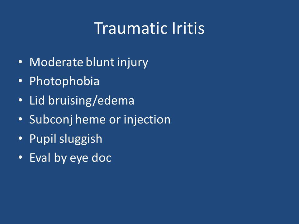 Traumatic Iritis Moderate blunt injury Photophobia Lid bruising/edema