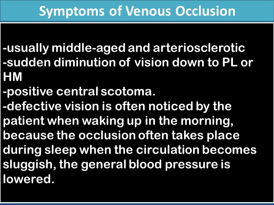 Symptoms of Venous Occlusion
