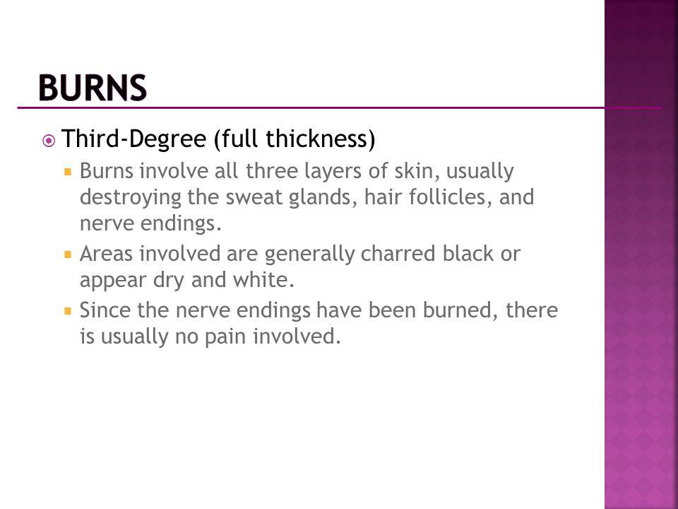 Burns Third-Degree (full thickness)
