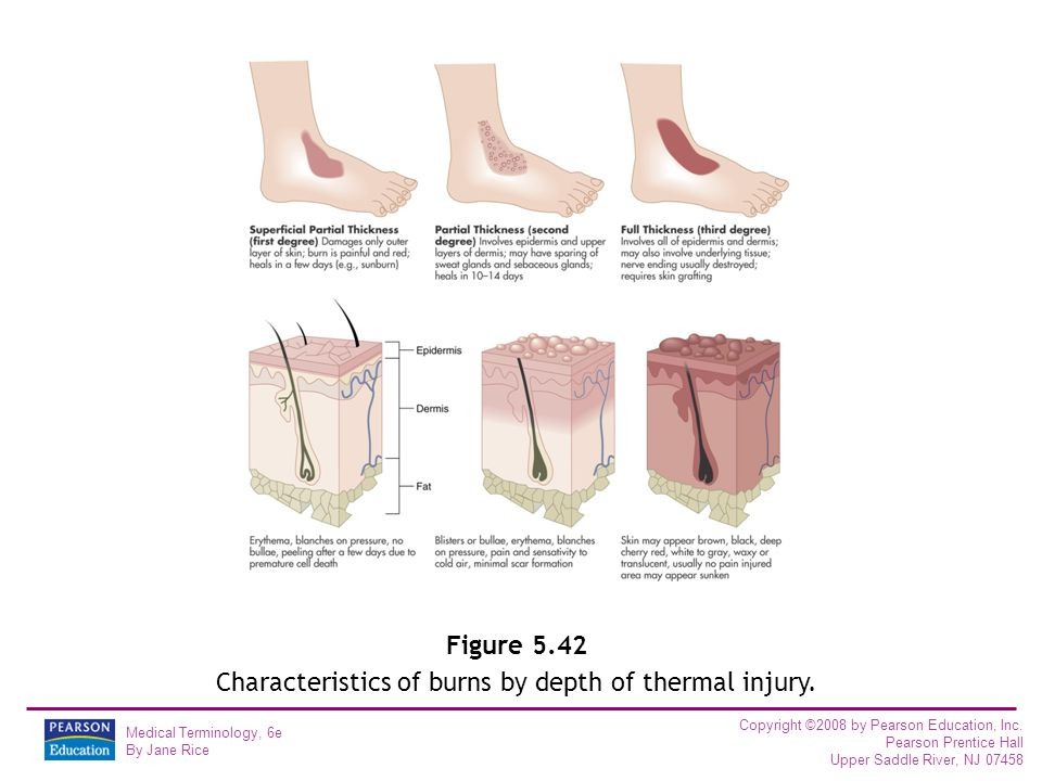Figure 5.42 Characteristics of burns by depth of thermal injury.