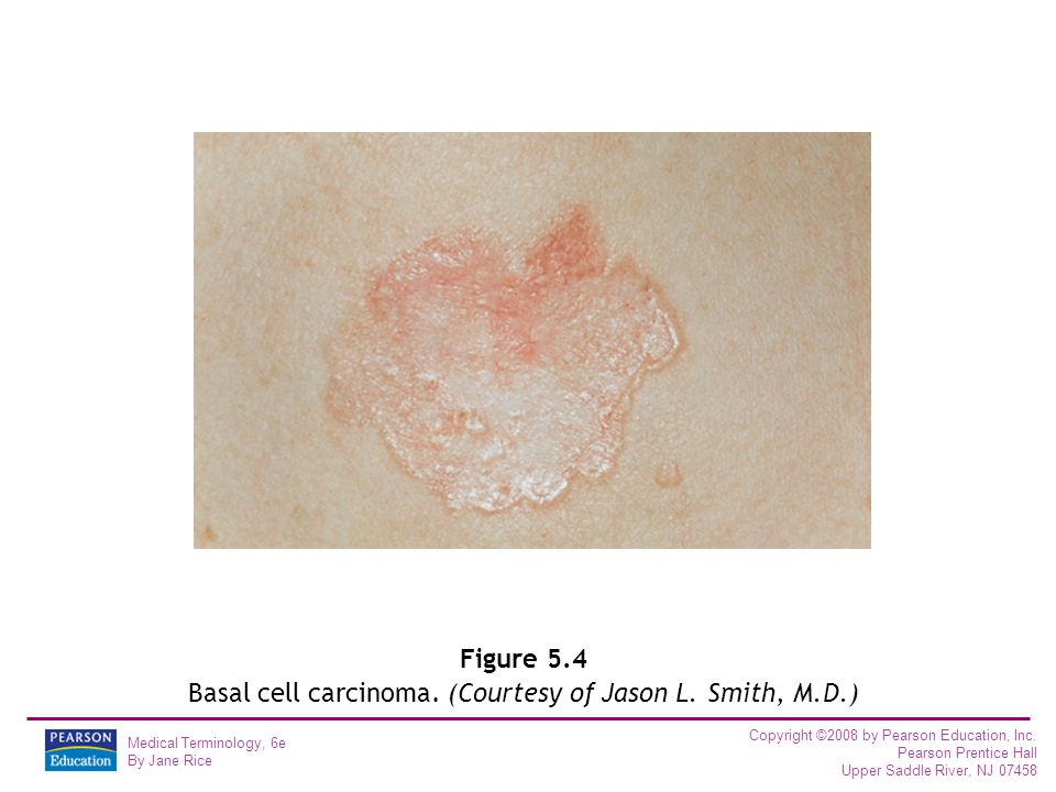 Figure 5.4 Basal cell carcinoma. (Courtesy of Jason L. Smith, M.D.)