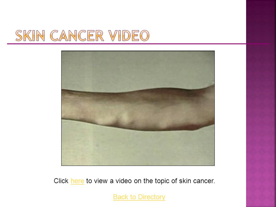 Click here to view a video on the topic of skin cancer.