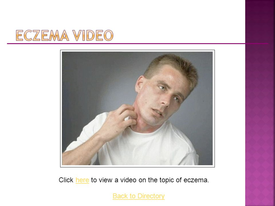 Click here to view a video on the topic of eczema.