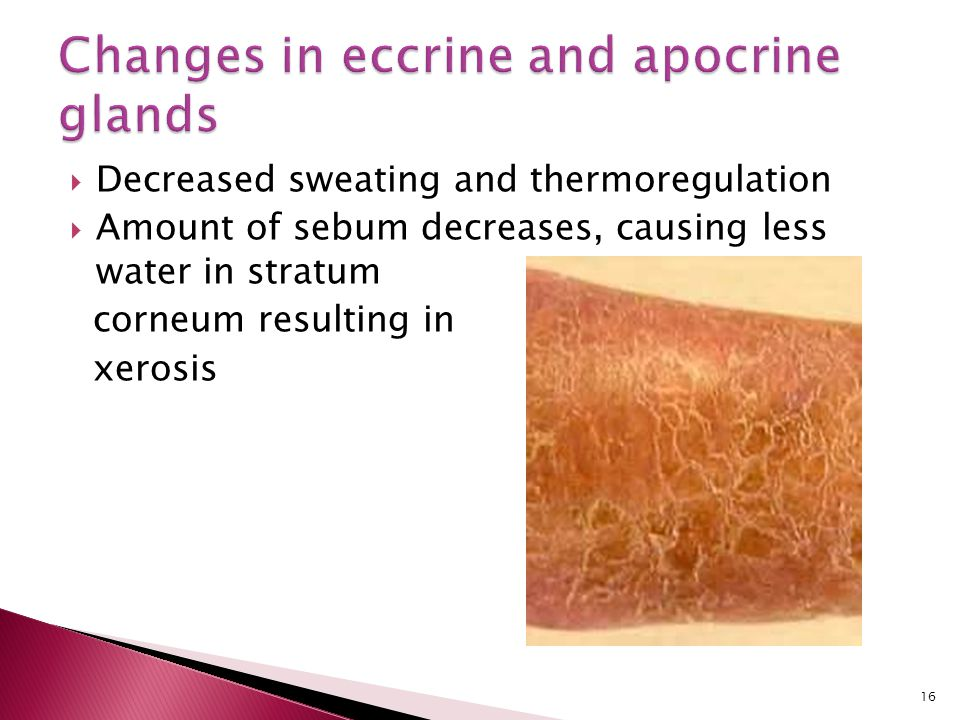 Changes in eccrine and apocrine glands