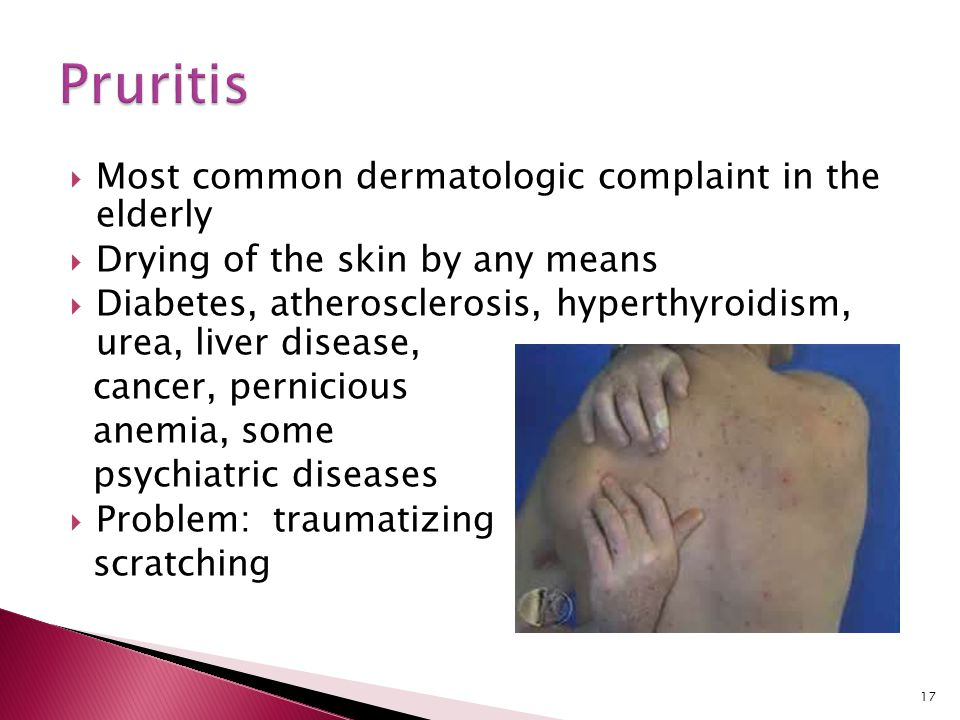 Pruritis Most common dermatologic complaint in the elderly