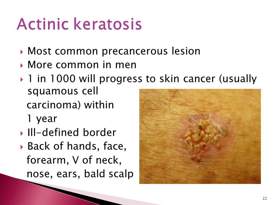 Actinic keratosis Most common precancerous lesion More common in men