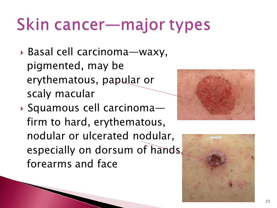 Skin cancer—major types