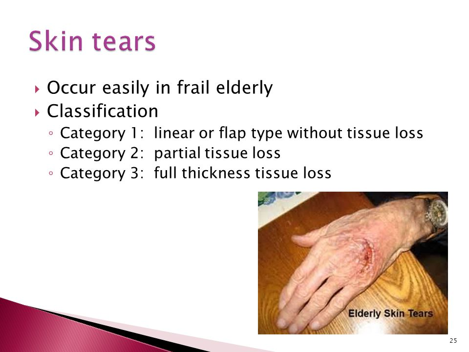 Skin tears Occur easily in frail elderly Classification
