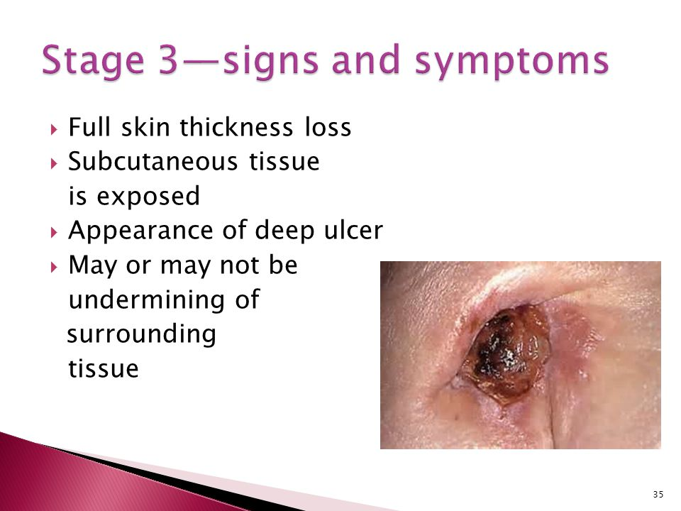 Stage 3—signs and symptoms