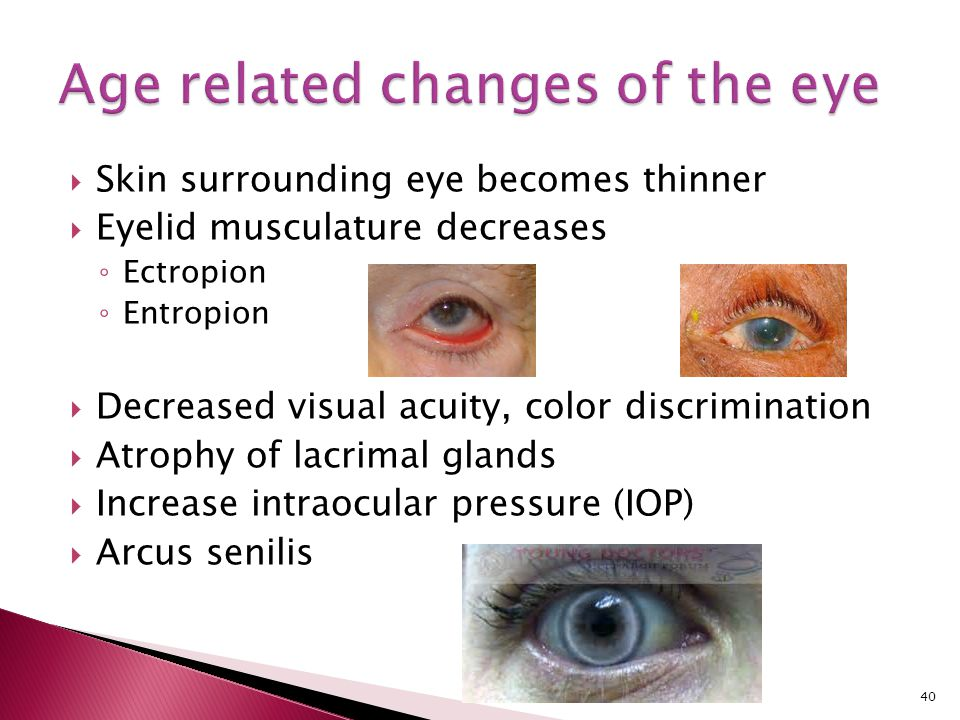 Age related changes of the eye