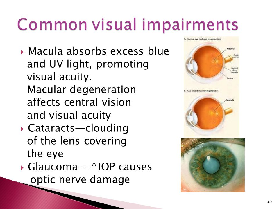 Common visual impairments