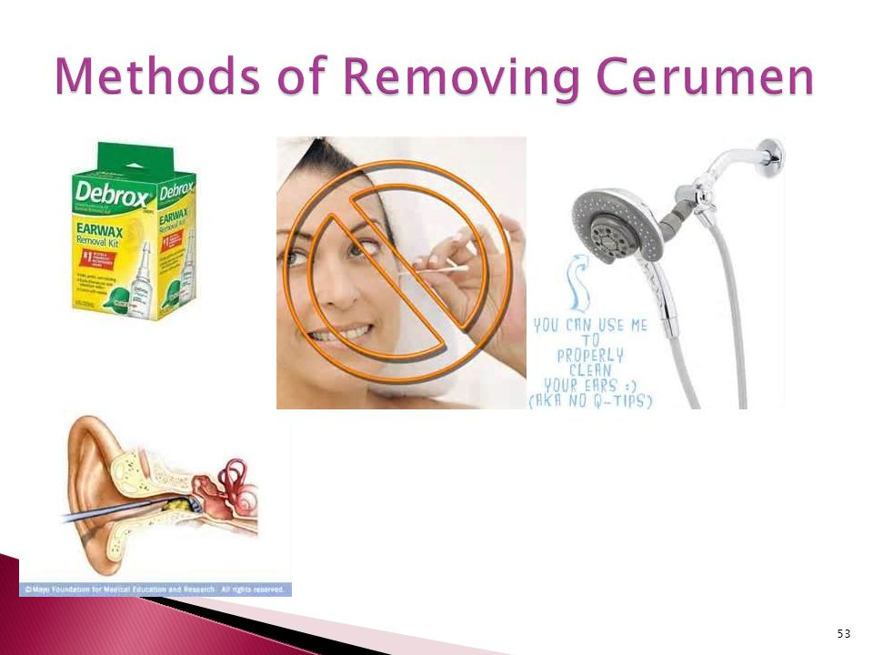 Methods of Removing Cerumen