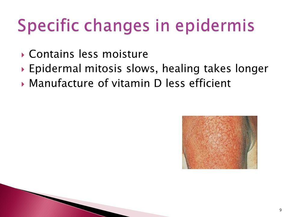 Specific changes in epidermis