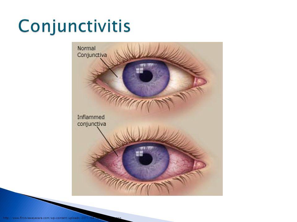 Conjunctivitis http://www.firstvieweyecare.com/wp-content/uploads/2011/04/conjunctivitis.png