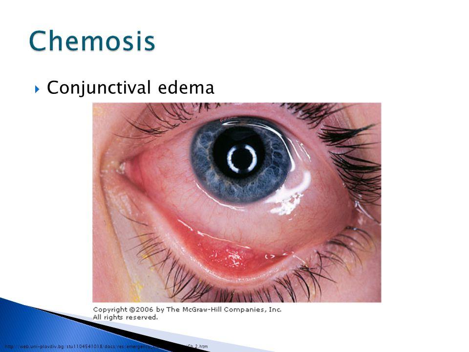 Chemosis Conjunctival edema