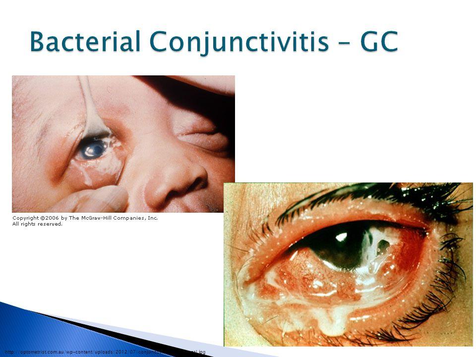 Bacterial Conjunctivitis – GC