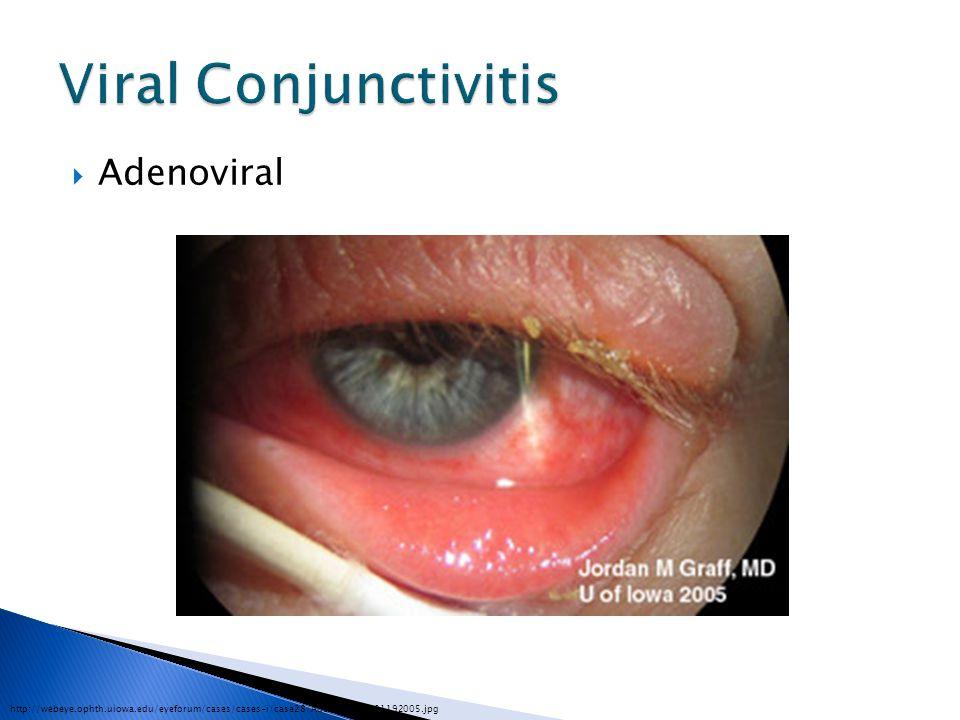 Viral Conjunctivitis Adenoviral
