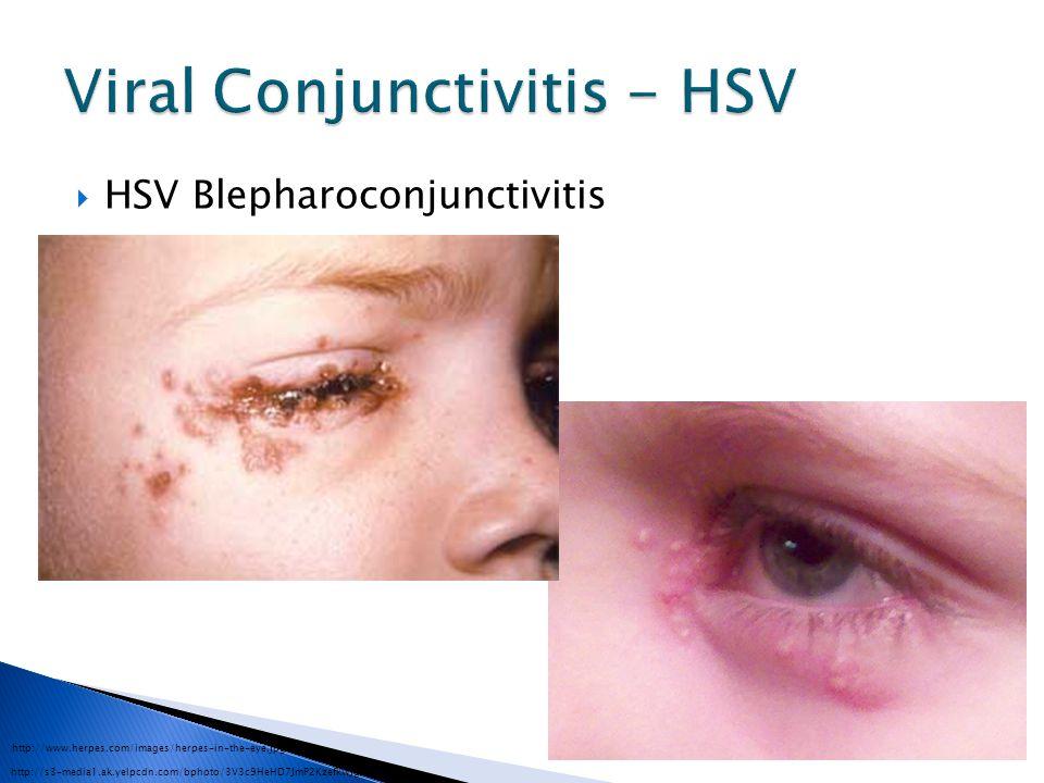 Viral Conjunctivitis - HSV