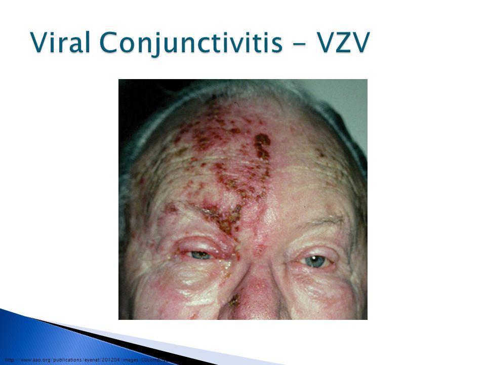 Viral Conjunctivitis - VZV