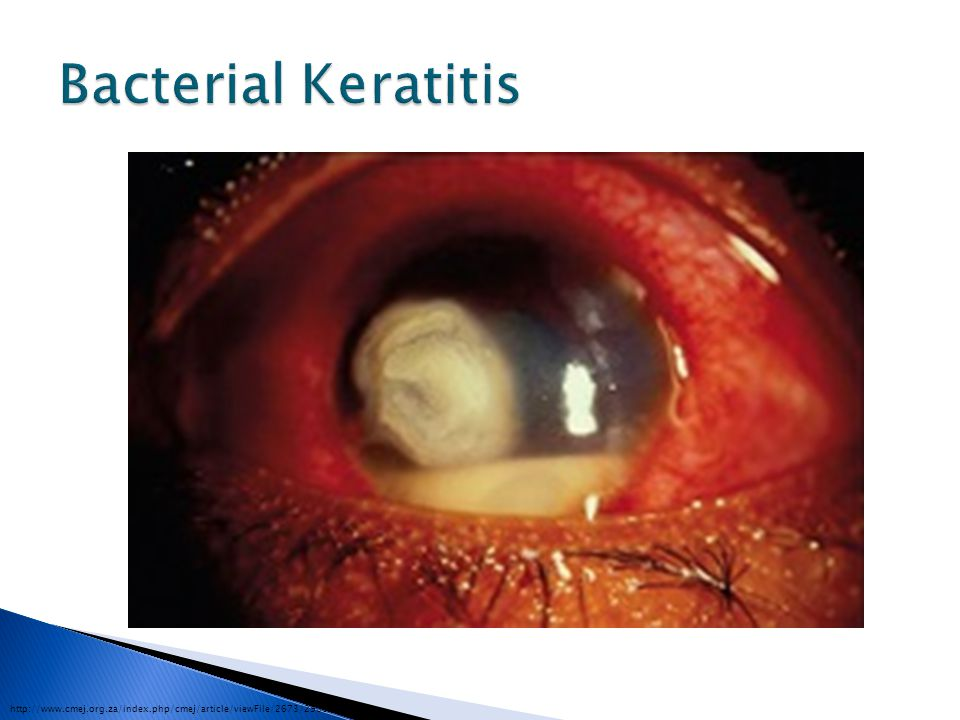 Bacterial Keratitis http://www.cmej.org.za/index.php/cmej/article/viewFile/2673/2903/15652