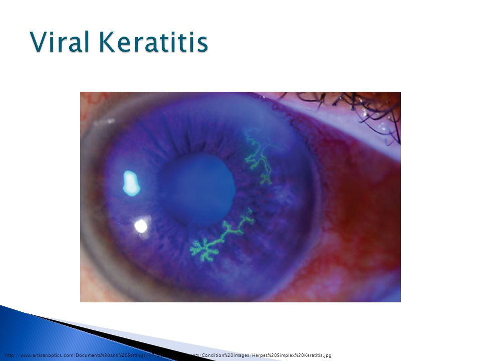 Viral Keratitis http://www.artisanoptics.com/Documents%20and%20Settings/27/Site%20Documents/Condition%20Images/Herpes%20Simplex%20Keratitis.jpg.