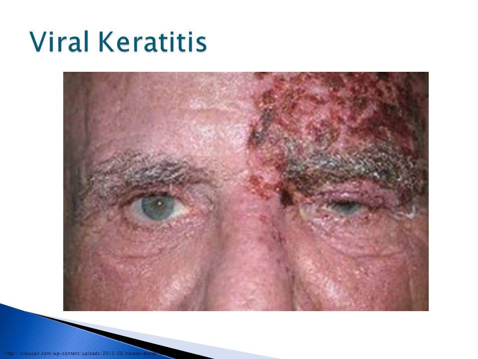 Viral Keratitis http://siklusair.com/wp-content/uploads/2013/08/herpes-zoster-keratitis.jpg
