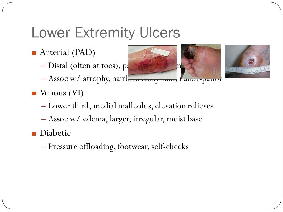 Lower Extremity Ulcers