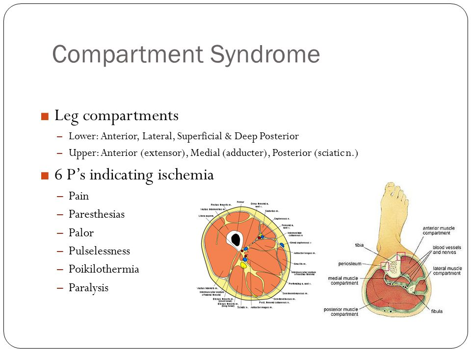 Compartment Syndrome Leg compartments 6 P's indicating ischemia Pain