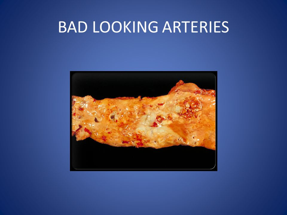BAD LOOKING ARTERIES