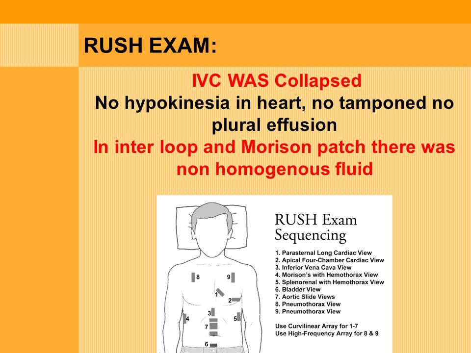 RUSH EXAM: IVC WAS Collapsed