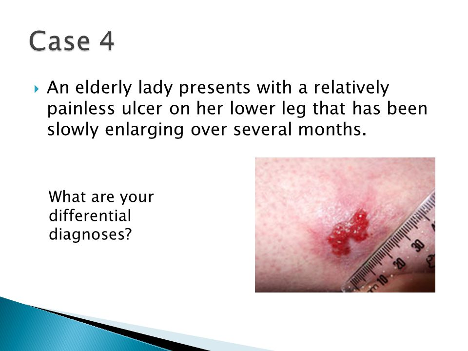 Case 4 An elderly lady presents with a relatively painless ulcer on her lower leg that has been slowly enlarging over several months.