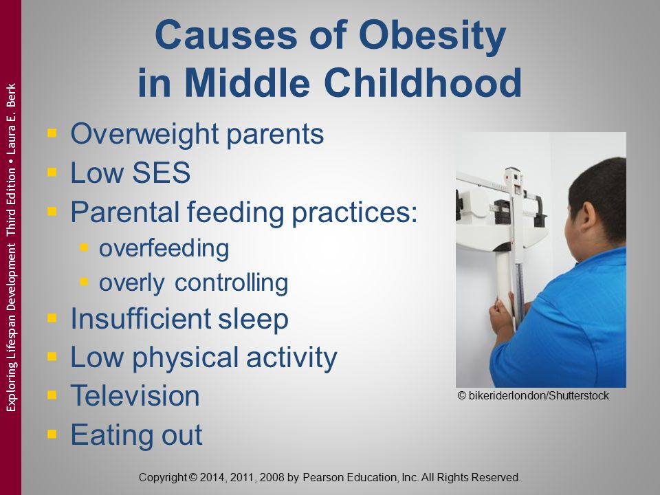 Causes of Obesity in Middle Childhood
