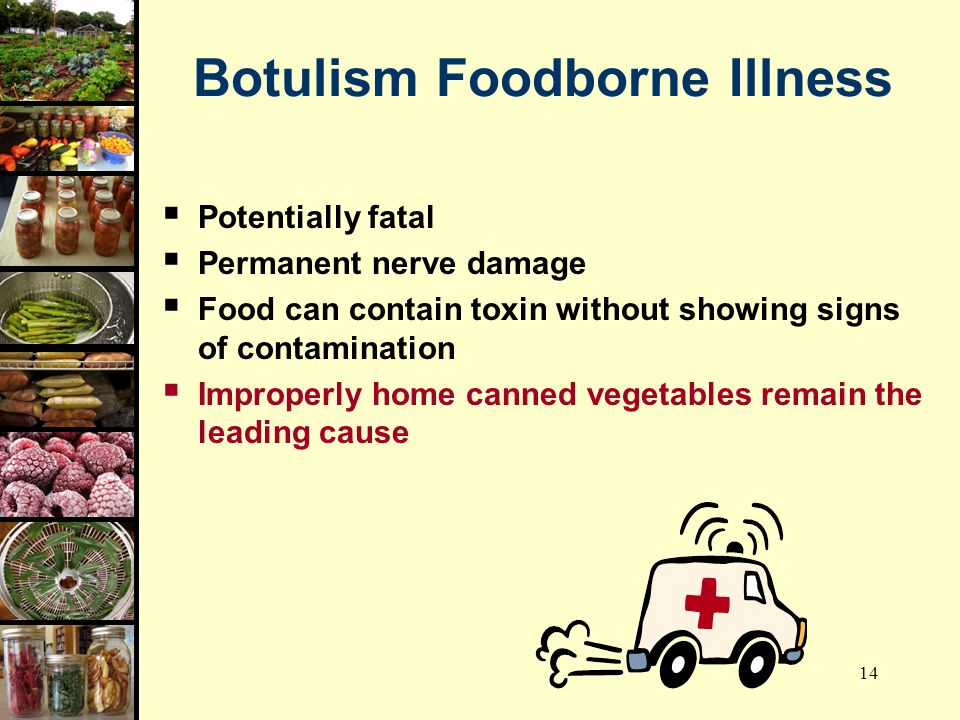 Botulism Foodborne Illness