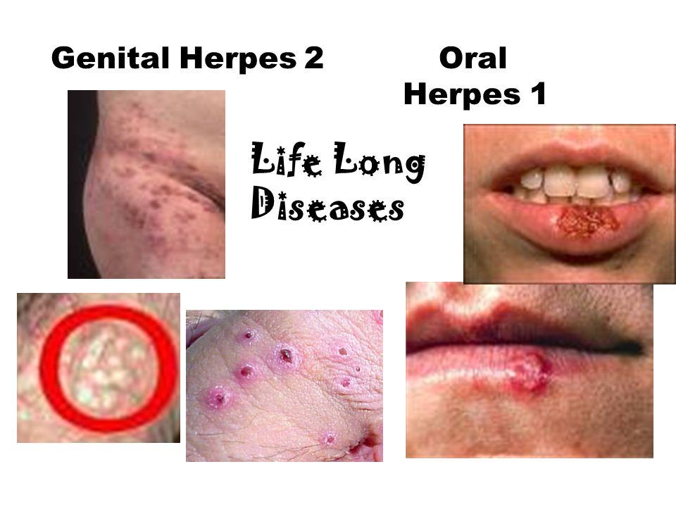 Genital Herpes 2 Oral Herpes 1