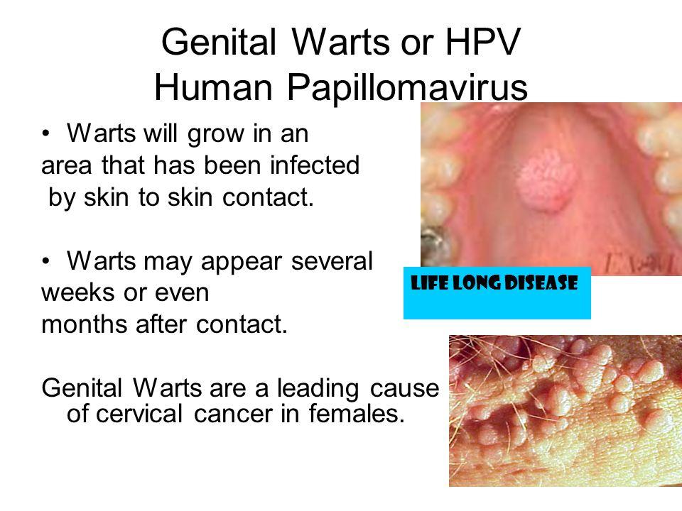 Genital Warts or HPV Human Papillomavirus