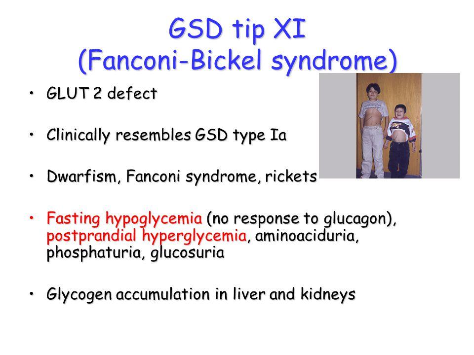 GSD tip XI (Fanconi-Bickel syndrome)