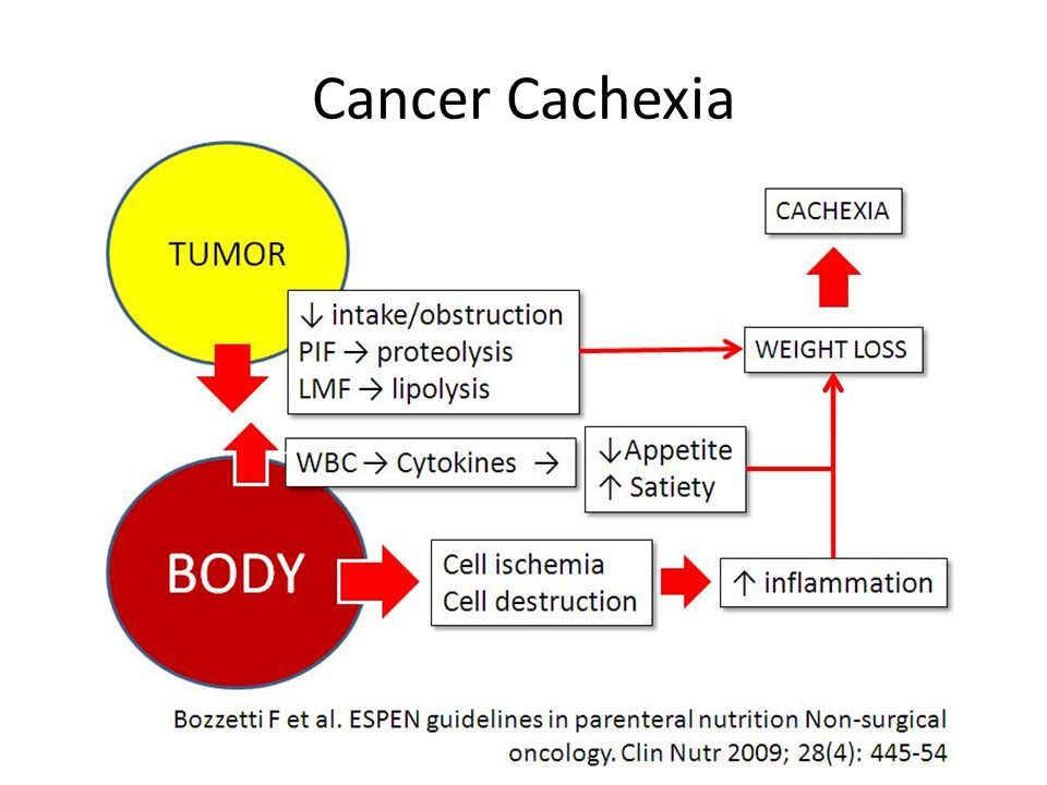 Cancer Cachexia Cancer cachexia is induced by two areas: