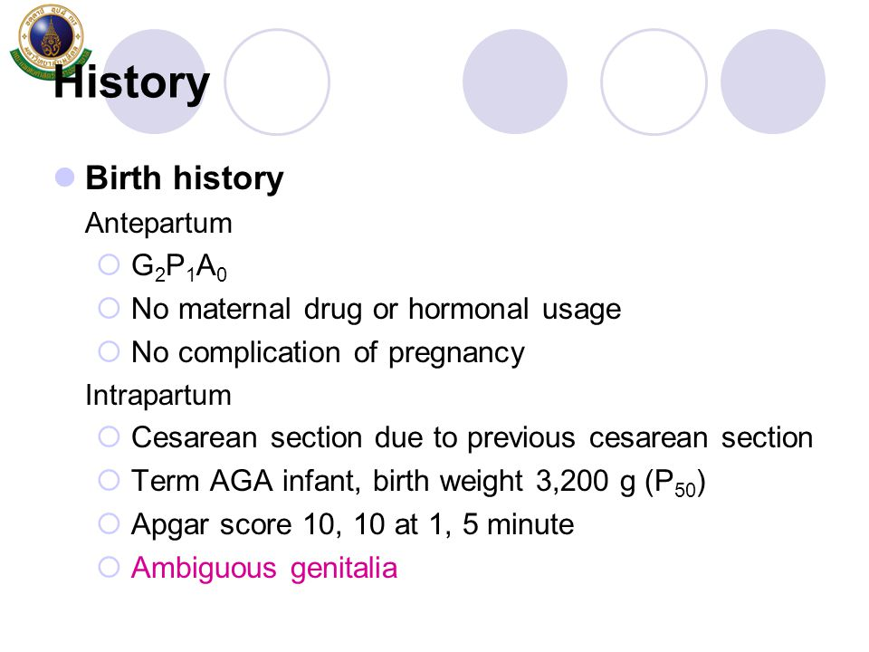 History Birth history G2P1A0 No maternal drug or hormonal usage