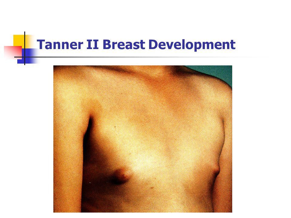 Tanner II Breast Development
