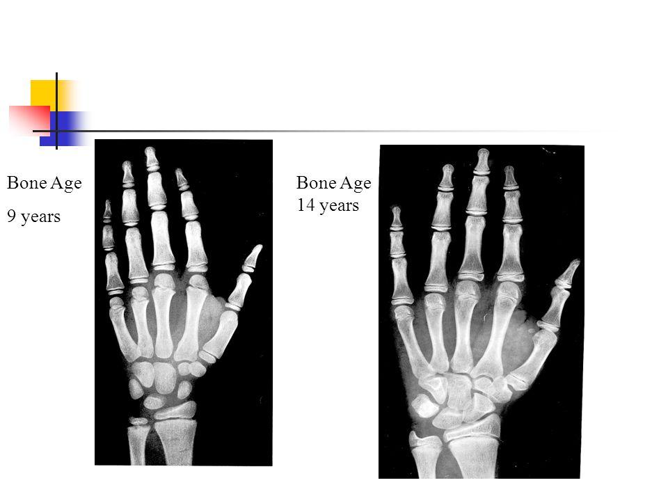 Bone Age 9 years Bone Age 14 years