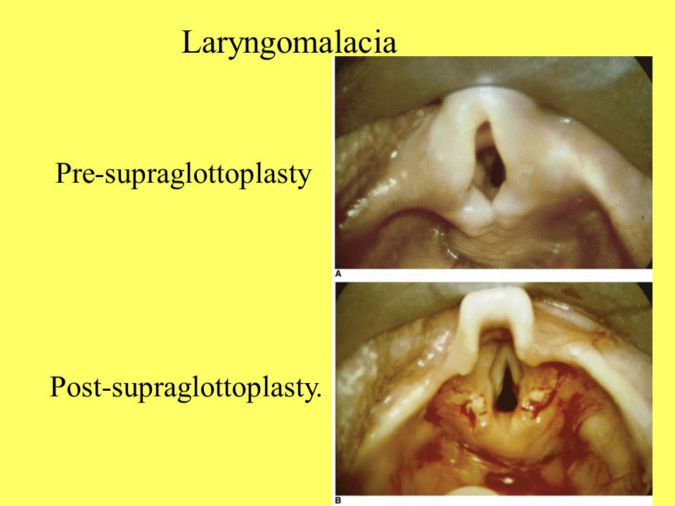 Laryngomalacia Pre-supraglottoplasty Post-supraglottoplasty.