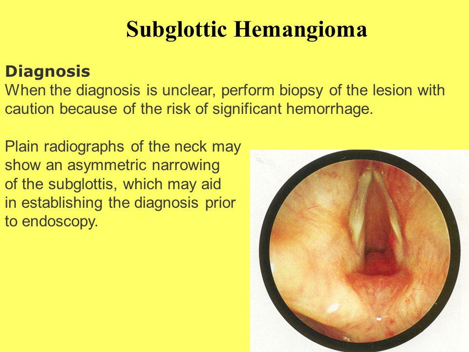 Subglottic Hemangioma