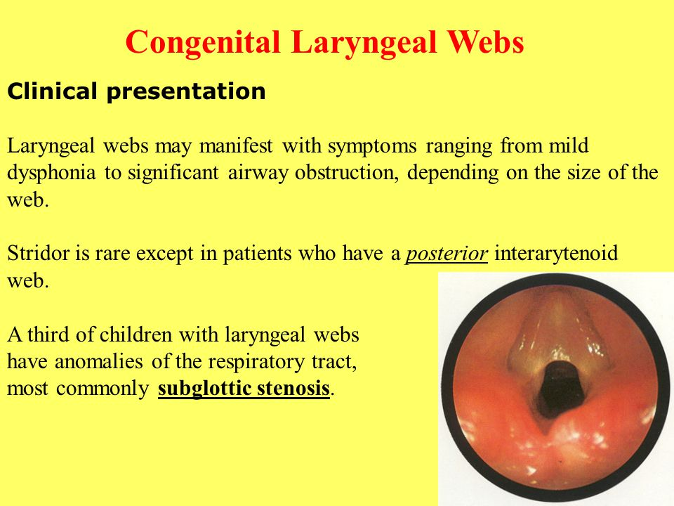 Congenital Laryngeal Webs