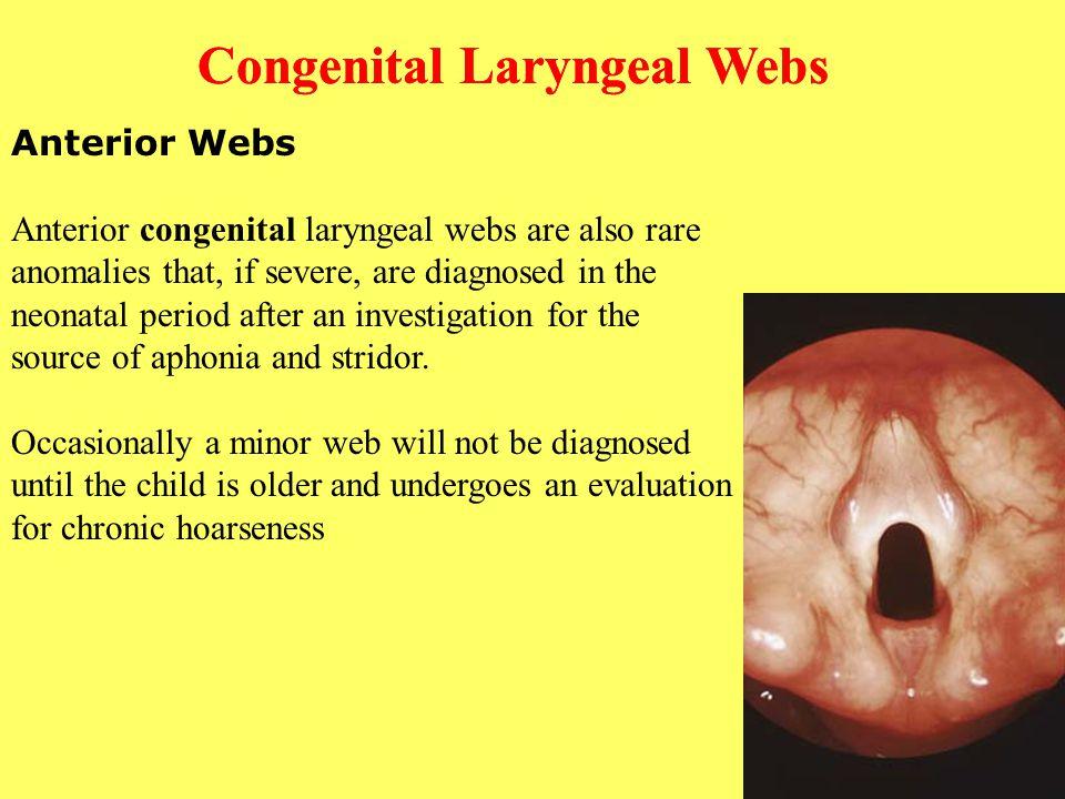 Congenital Laryngeal Webs Congenital Laryngeal Webs