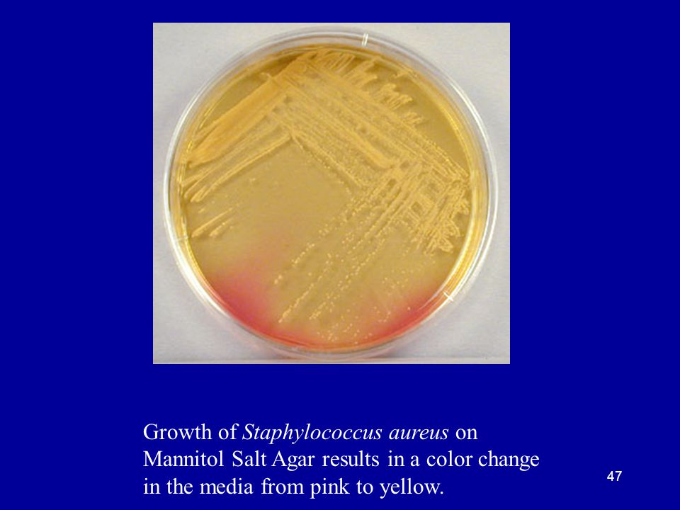 Growth of Staphylococcus aureus on Mannitol Salt Agar results in a color change in the media from pink to yellow.