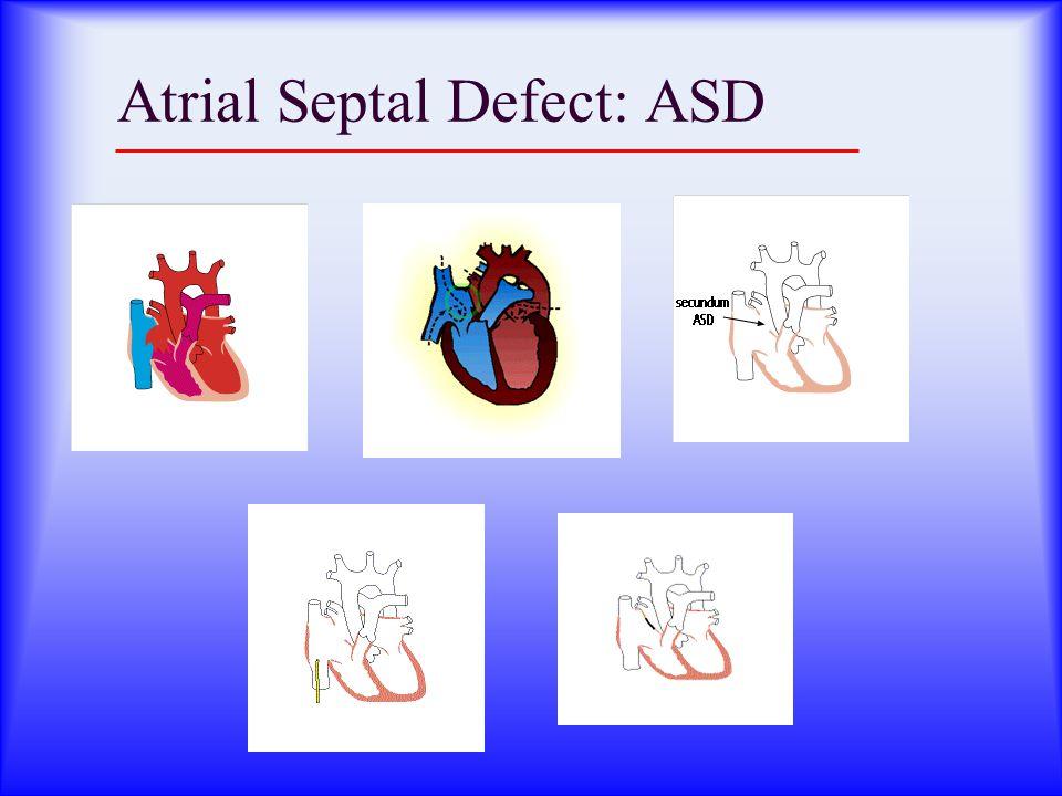 Atrial Septal Defect: ASD