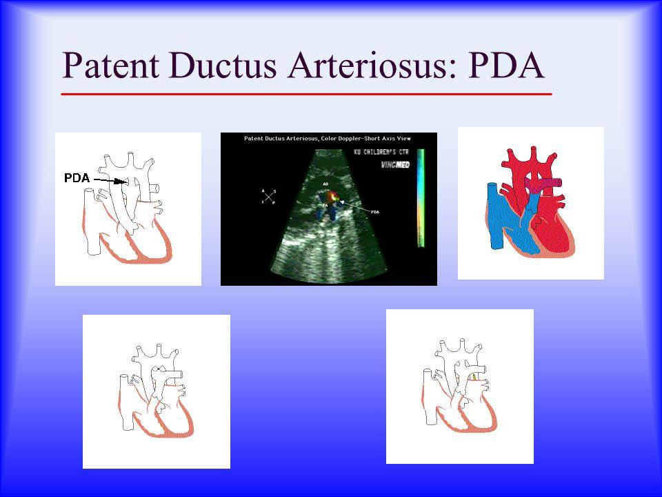 Patent Ductus Arteriosus: PDA