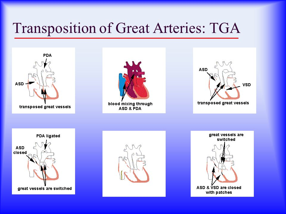 Transposition of Great Arteries: TGA