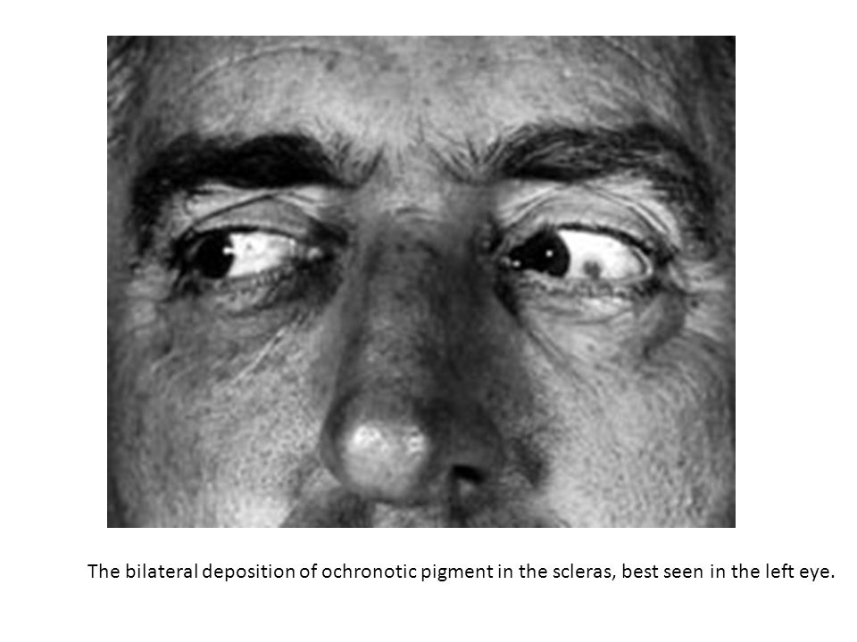 The bilateral deposition of ochronotic pigment in the scleras, best seen in the left eye.